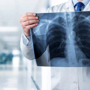 استخدام تکنسین رادیولوژی