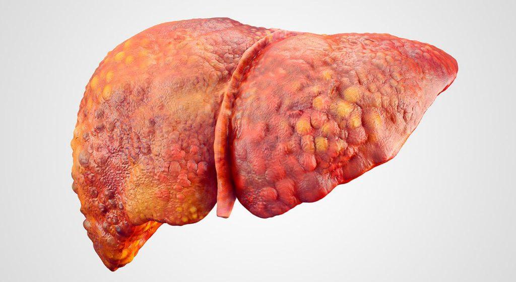 تشخیص کبد چرب بدون نمونه گیری با تست فیبرواسکن